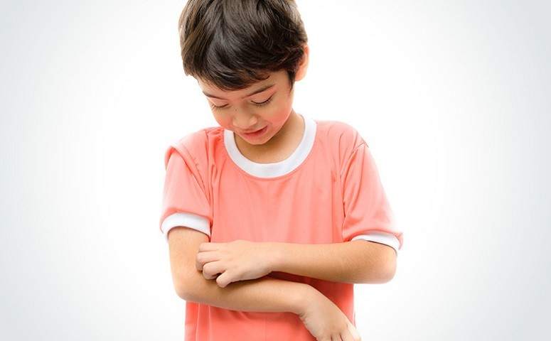 How To Detect And Treat The Symptoms Of Ringworm In Children