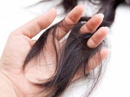 hand-and-hair-loss.jpg