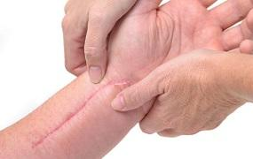 photo-of-holding-hand-with-scar.jpg