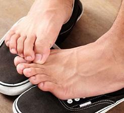 feet-with-athletes-foot.jpg