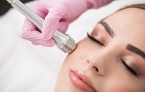 Microdermabrasion for Smaller Scars
